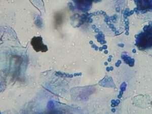 膿皮症の細菌